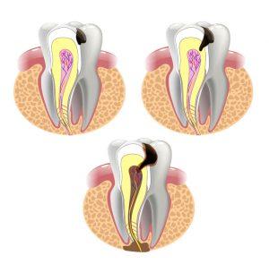Próchnica zęba-leczenie kanałowe- Centrum Stomatologiczne Demed-mikroskop