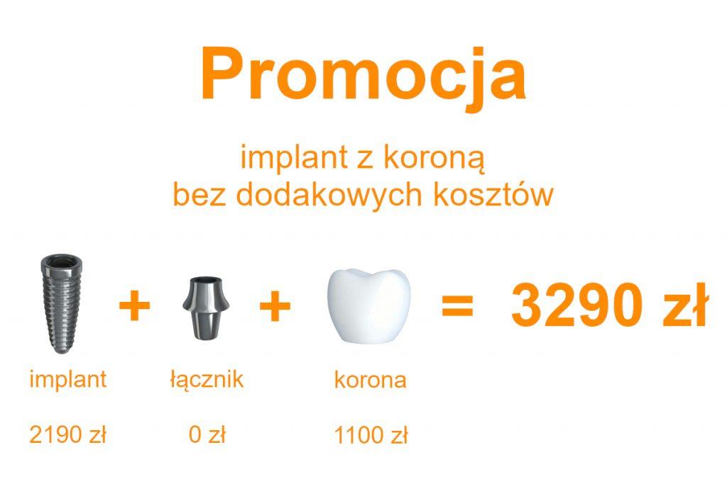 Promocja implant z koroną 3290 zł Ursynów